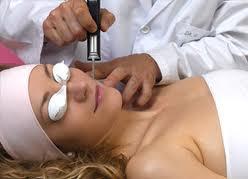 Pedido Rejuvenecimiento Facial Láser Fraccional (Microresurfacing)