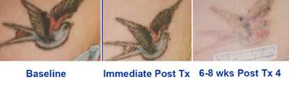 Pedido Tratamientos de Manchas y Tatuajes