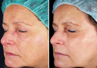 Pedido Rejuvenecimiento facial laser fraccional de CO2