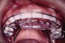 Pedido Ortopedia funcional de los maxilares