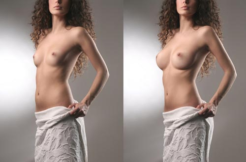 Pedido Aumento mamario
