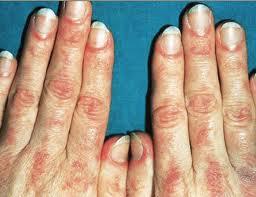 Pedido Diagnóstico de enfermedades autoinmunes