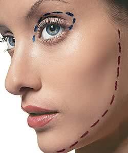 Pedido Lifting de rostro