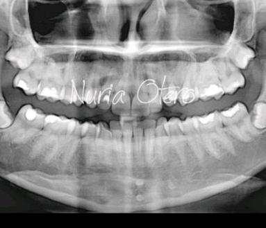 Pedido Cirugía de Cordales
