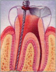 Endodoncias, Tratamientos de Conducto