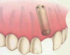 Implantes dentales óseo integrados