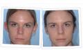 Cirugía plástica de orejas